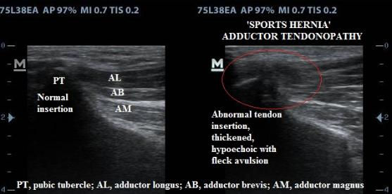 sports_hernia_adductor_tendon_tear_ultrasound_new_jersey_sports_medicine.jpg