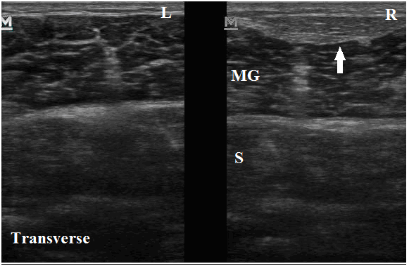 Superficial_Gastrocnemius_Crural_Fascia_Thickening_MSK_Ultrasound_Marc_Silberman_New_Jerse