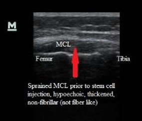 Ultrasound_MCL_sprain_prior_to_stem_cell_injection_New_Jersey_Sports_Medicine.jpg
