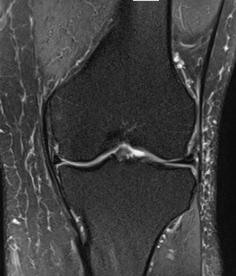 stem_cell_knee_arthritis_femur_knee_fracture_healed_new_jersey_sports_medicine_frontal.png