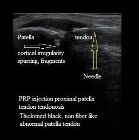 PRP injection patella tendon
