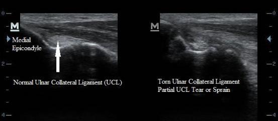 ultrasound_ulnar_collateral_ligament_sprain_ucl_tear_elbow_new_jersey_sports_medicine.jpg