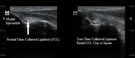 UCL Tommy John Ulnar Collateral Ligament Sprain