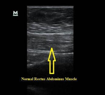 Ultrasound_normal_rectus_abdominus_muscle_NJ_Sports_Medicine.jpg