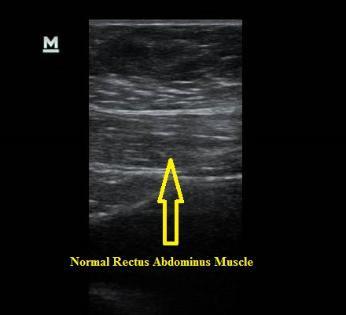 Normal Rectus Abdominus Muscle