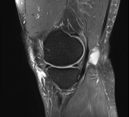 stem_cell_knee_arthritis_femur_knee_fracture_healed_new_jersey_sports_medicine.png