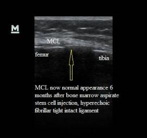 Ultrasound_MCL_sprain_normal_appearance_after_stem_cell_injection_treatment_New_Jersey_Spo