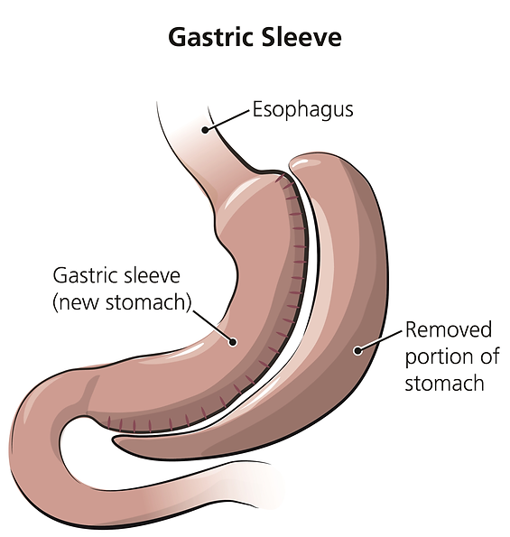 gastric sleeve.png