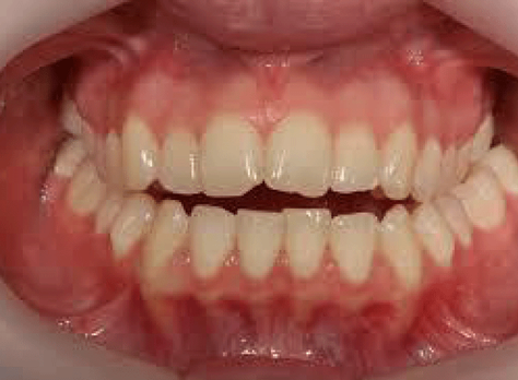 Happy With How Your Teeth Look?