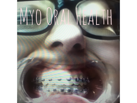 Who Needs Orofacial Myofunctional Therapy?