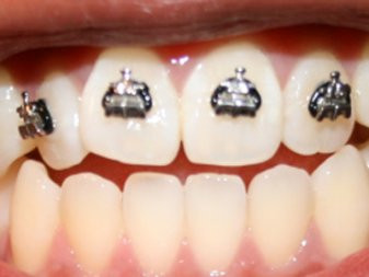 Braces Again? What is Orthodontic Relapse?