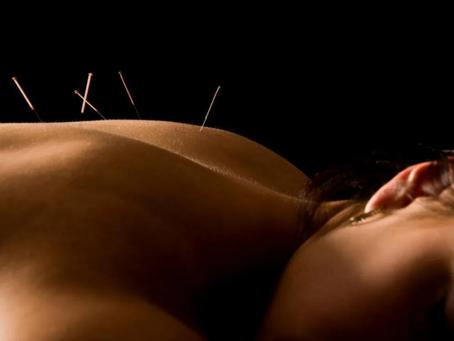 ¿Cómo funciona la acupuntura?