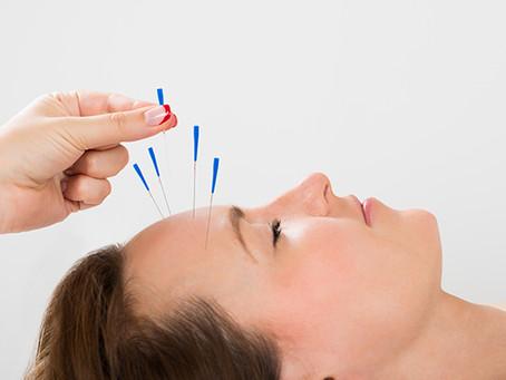 Acupuntura para parálisis facial