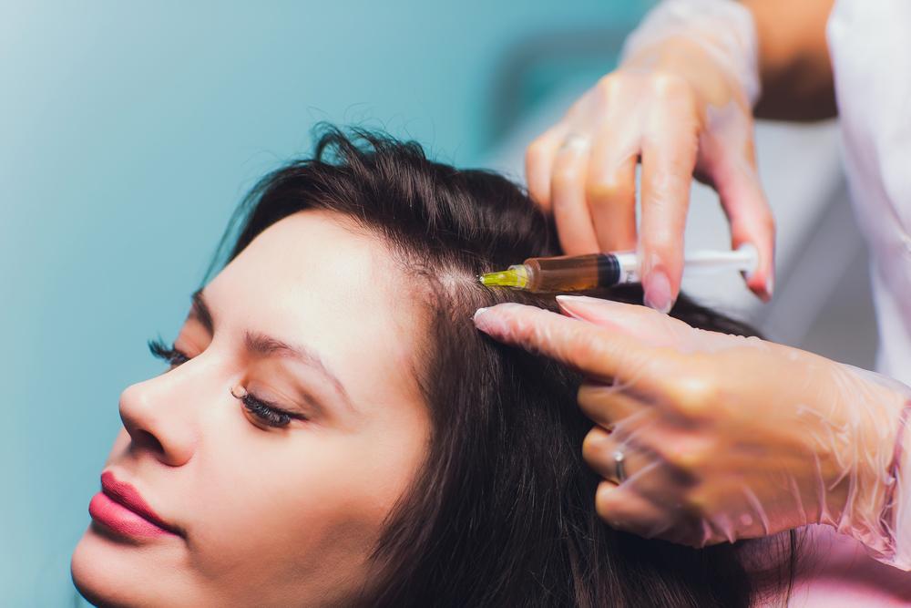 PRP - Hair Restoration