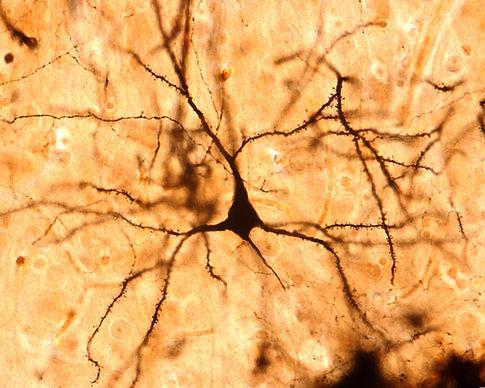 A pyramidal neuron shown with the Golgi