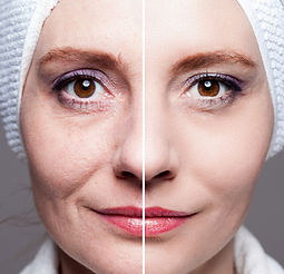 after shots - skin care, anti-aging proc