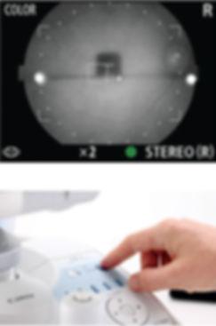 Canon CX-1 Retinal Camera 2019 2.jpg