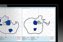 Semi-automated-kinetic_perimetry_modern-