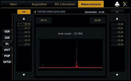 axial length.jpg