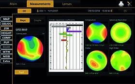 Topcon CA-800 Corneal Zernike analysis.j