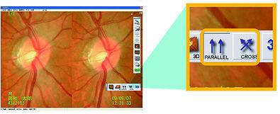 Kowa Retinal Observation on 3D Images.jp