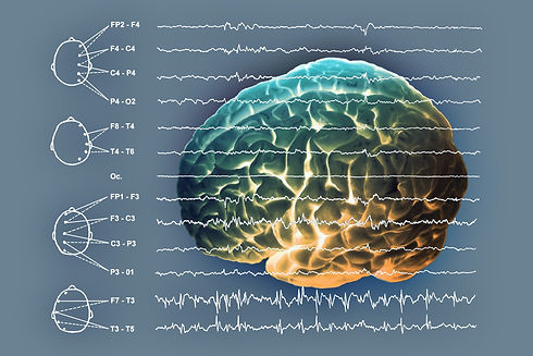 EEG foto 1.jpg