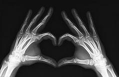 x_ray_heart.jpg