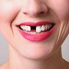 prosthodontics.jpg