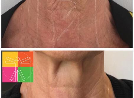 Résultat à 6 mois d'un traitement par HIFU au niveau du cou