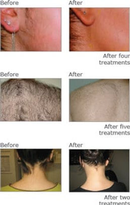 Results of IPL laser hair removal