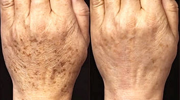 Get rid of age spots with photorejuventation