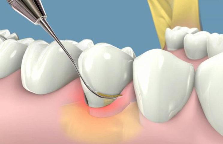tratamiento-periodoncia-37vc8v9aeok7lps8