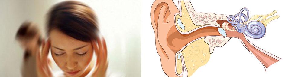 vestibular-rehabilitation-for-inner-ear-