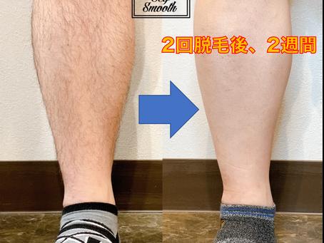 SelfSmoothで見るメンズ脱毛の実態と傾向②(来店傾向)