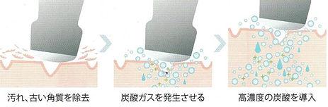 炭酸導入.jpg