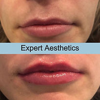Last%20Lips%20of%20the%20week%20by%20%40