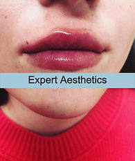 Lip%20fillers%20from%20start%20to%20half