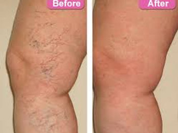 Package of 2 Spider Vein Removal