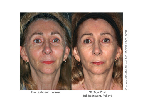 Before and after Pelleve treatment