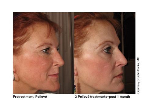 Right Side Full Face, 3 Pelleve treatment