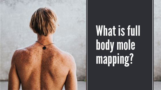 Full body mole mapping | The Clinic