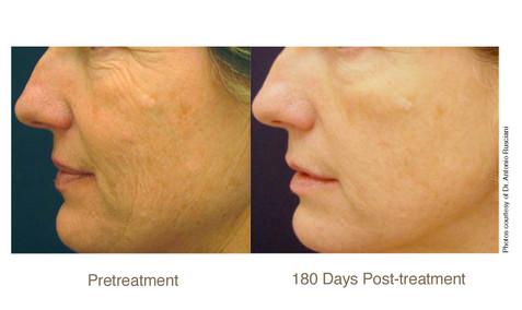 Cheek Texture Pelleve 180 days post-treatment