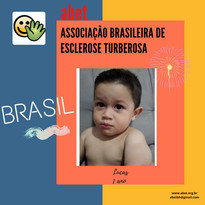 Lucas - 1 ano