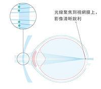 Eye Ball_Stellest_1.jpg