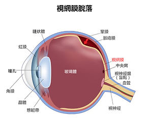 Retinal_Detachment_HK.jpg