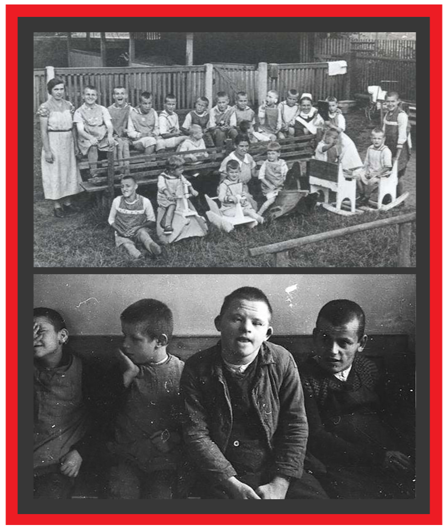 2 black and white photos. Photo 1: Children sitting on a bench wearing gowns outside an institution. Photo 2: 4 boys on a bench, one of whom has Down's Syndrome.