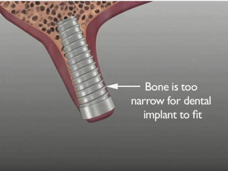 Why bone grafting after extraction is important.