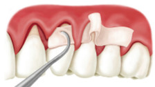 Palate-less Gum Grafting: Trillium at the forefront of dentistry!
