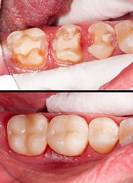 Tooth restoration before and after denta