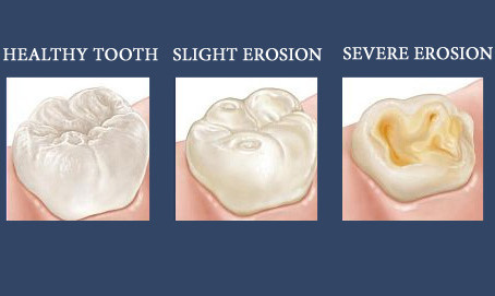 Protect your teeth from acid erosion!
